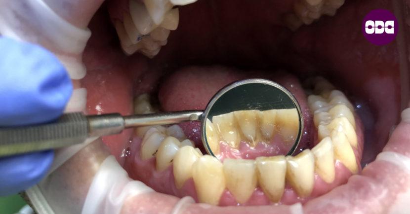 Натрупан зъбен камък
