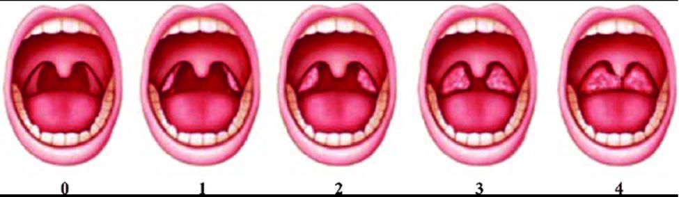 метод на Friedman за диагностика на сънна апнея