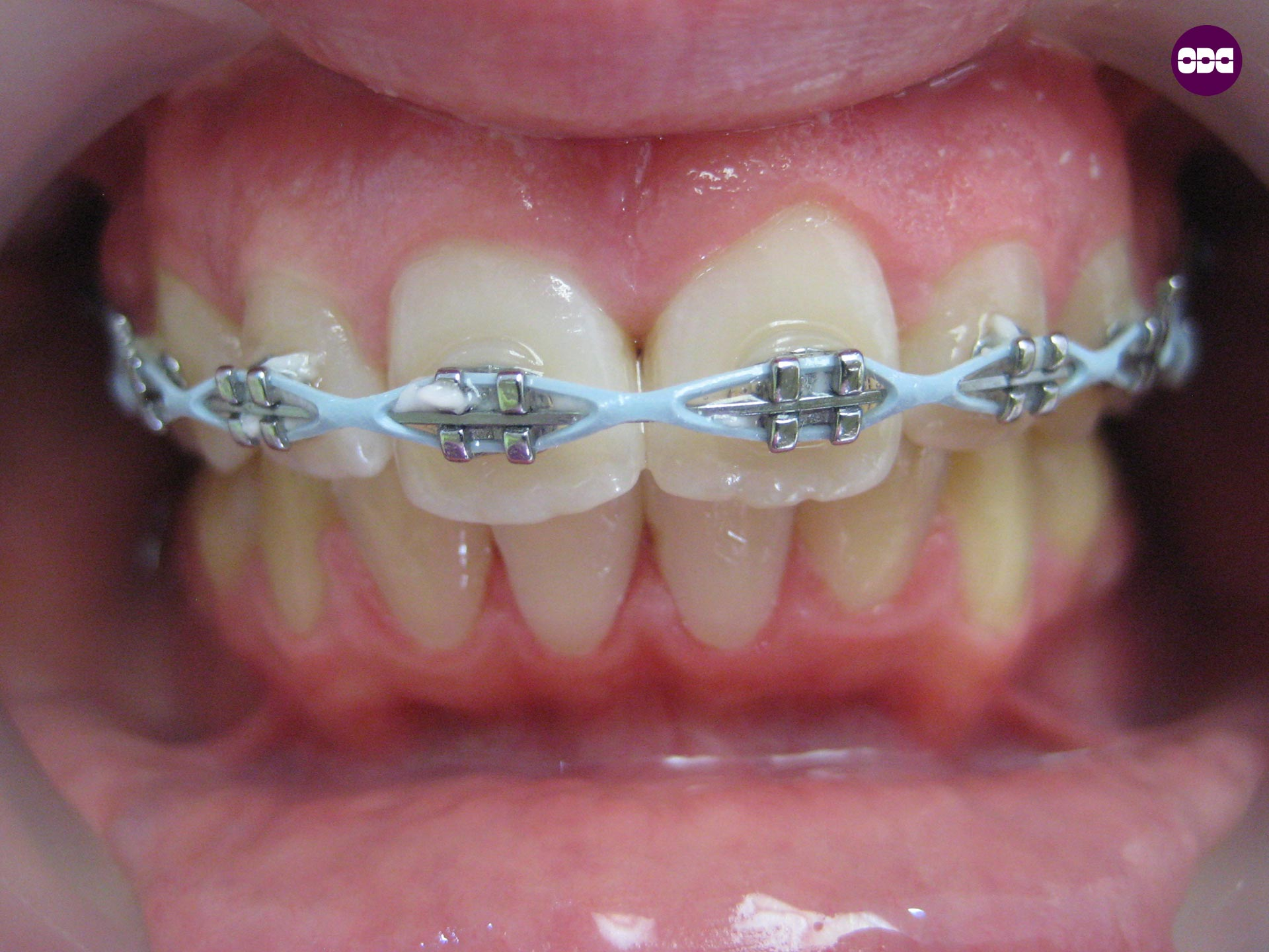 зъболекар ортодонт Сливен