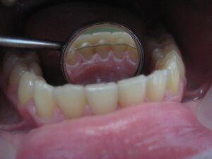 Какво е ретайнер и каква е неговата роля в ортодонтското лечение?
