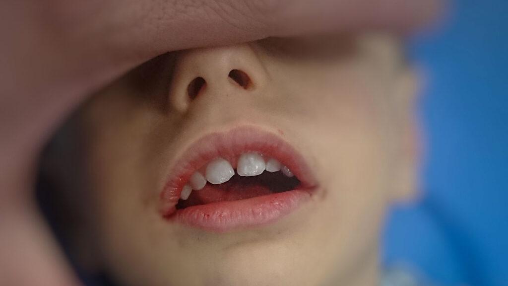 Аденоиден фациес – нагледно при тригодишно дете преди аденоидектомия (снимки – личен архив на Д-р Чилингиров)