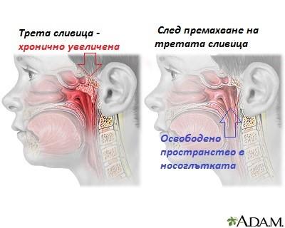 Съвременният подход към лечението на третата сливица и кога се прибягва до отстраняването й.