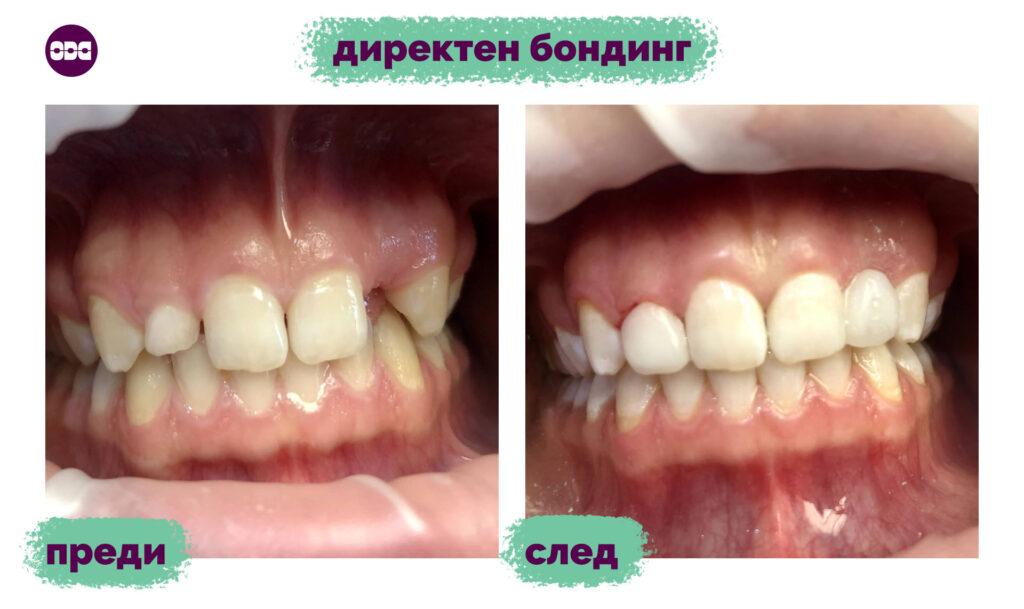 Комбинация на директен бондинг на зъб 12 (горен десен втори резец), който е с нетипични размери и форма и липса на 22-ри зъб (горен ляв втори резец), който възстановихме с гласфибро влакна