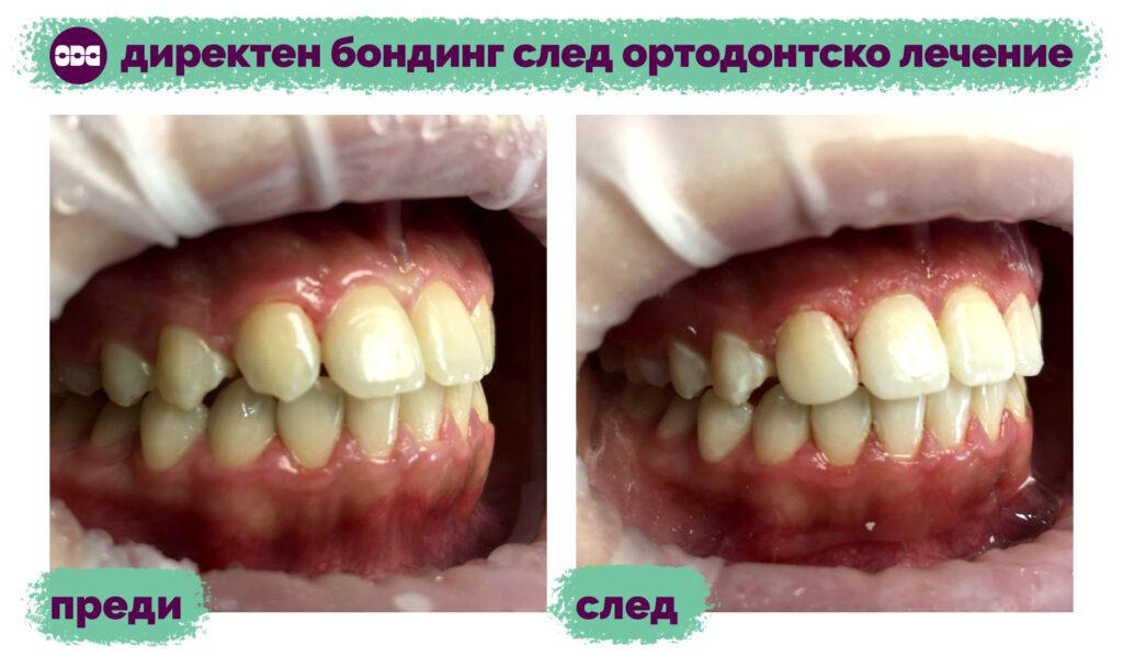 Директен бондинг след ортодонтско лечение
