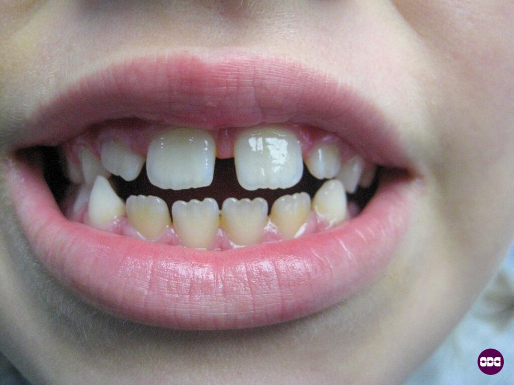 Дете с отворена захапка в процес на ортодонтско лечение със силиконова шина