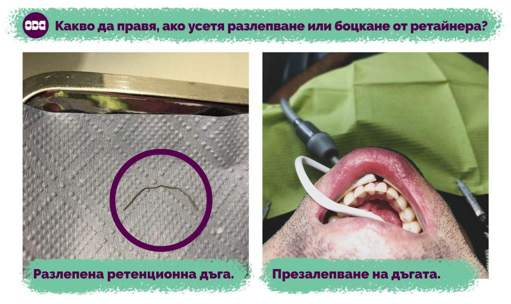 Разлепена ретенционна дъга. | Презалепване на разлепена ретенционна дъга.