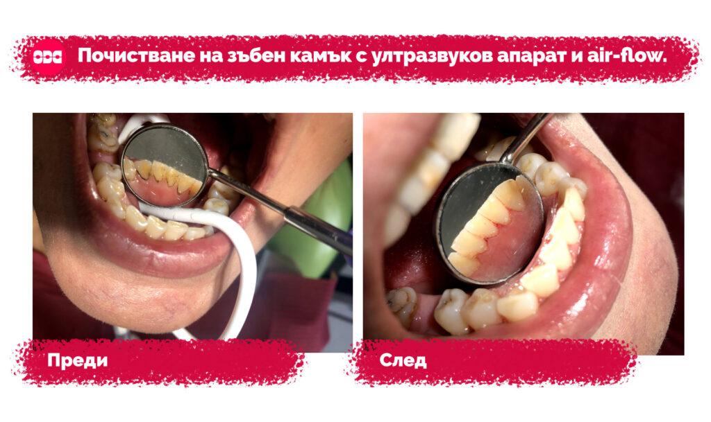 Преди и след почистване на зъбен камък с ултразвуков апарат и air-flow