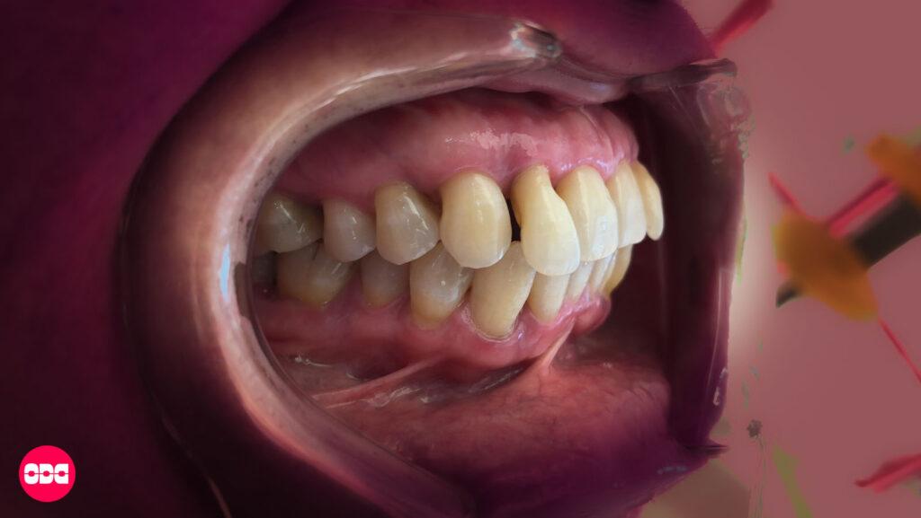 Удължени зъби вследствие на пародонтит