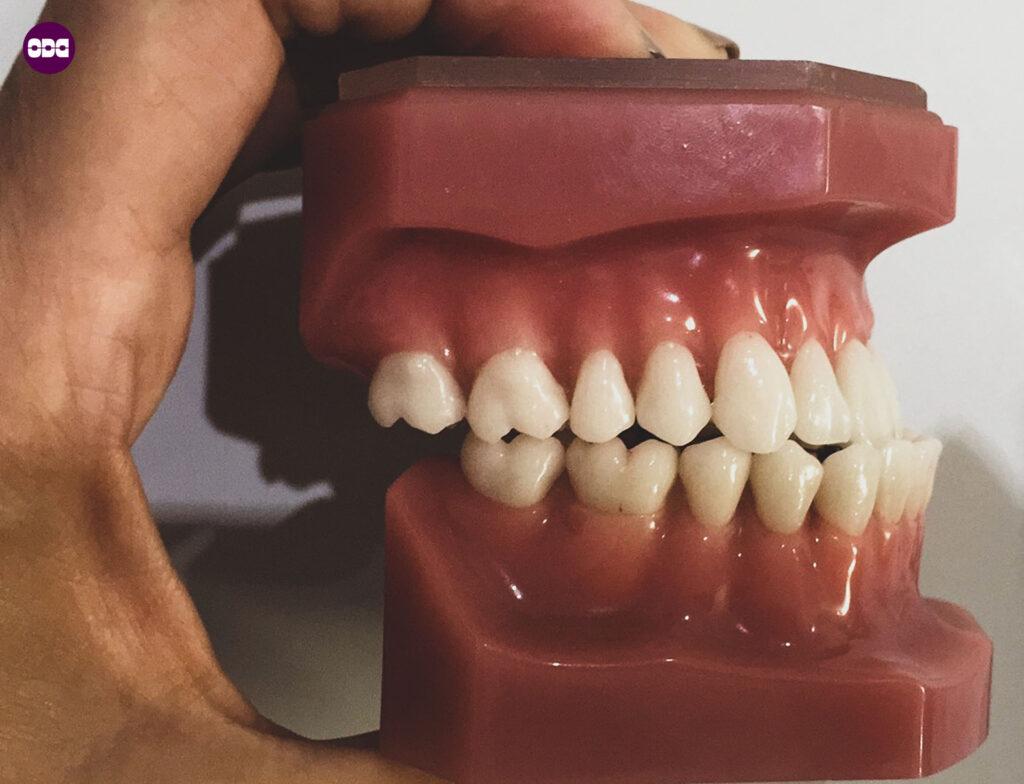 Кривите зъби само естетичен проблем ли са? Обратна захапка.
