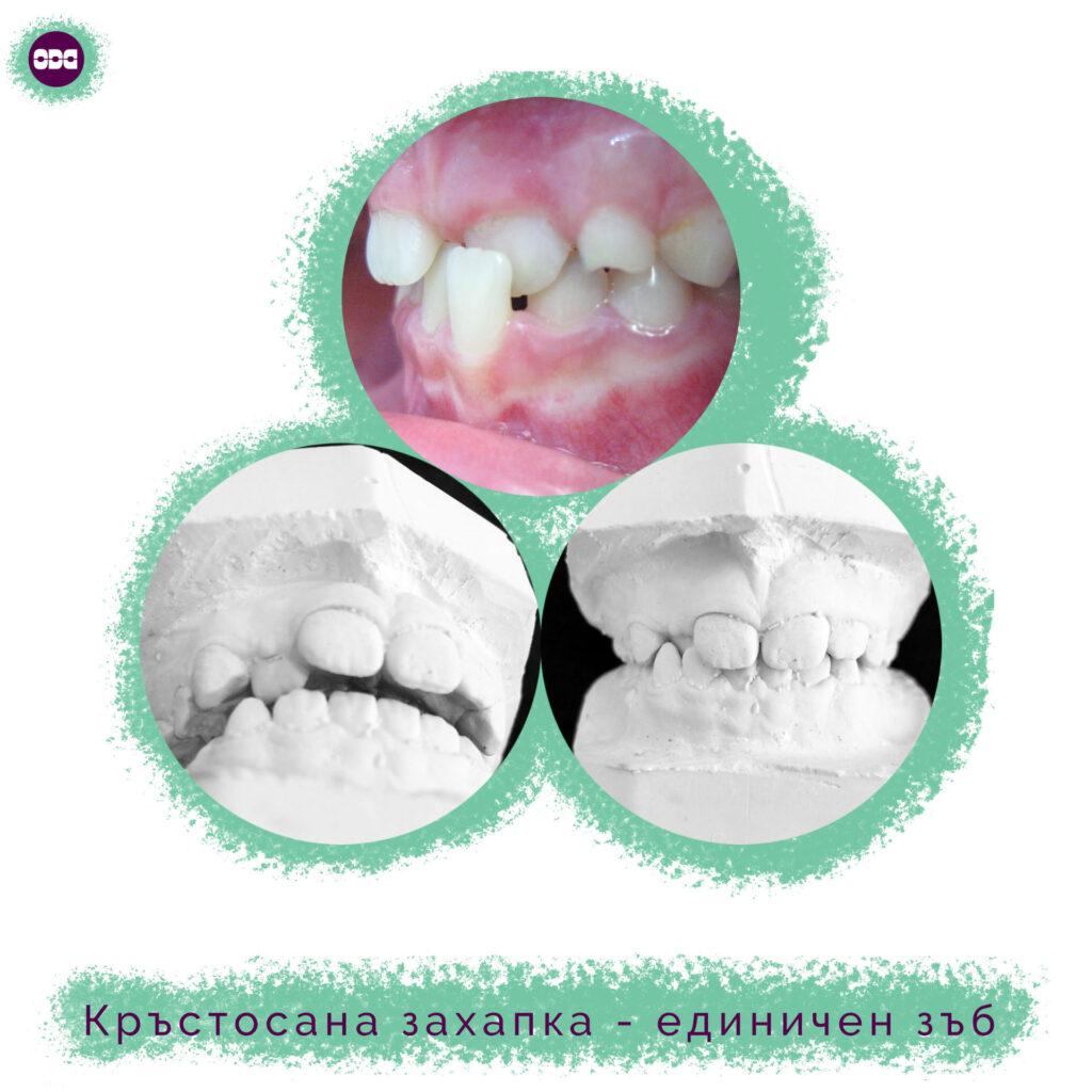 Кривите зъби само естетичен проблем ли са? Кръстосана захапка - единичен зъб.