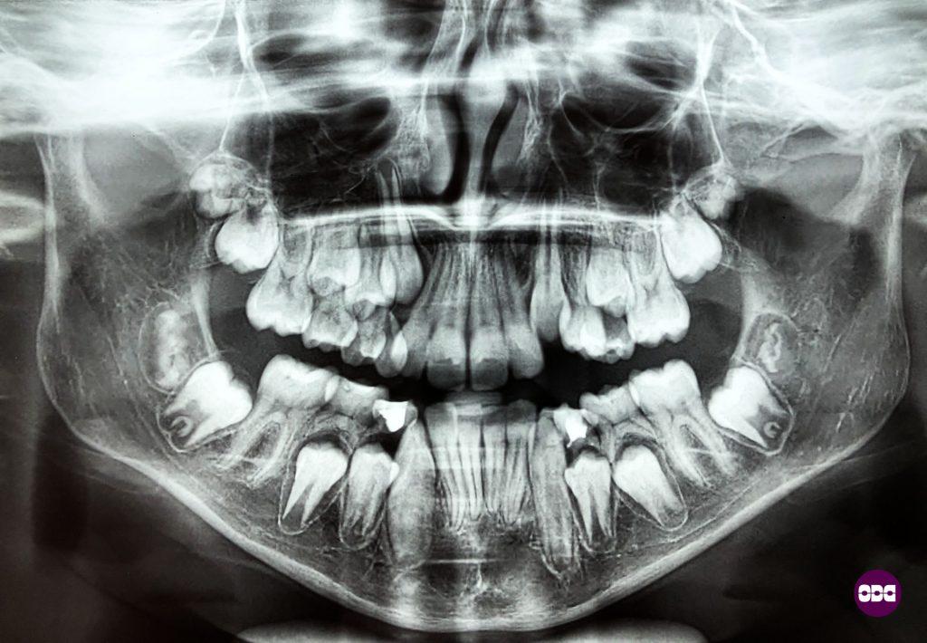 Панорамната рентгенова снимка дава отговори на много въпроси